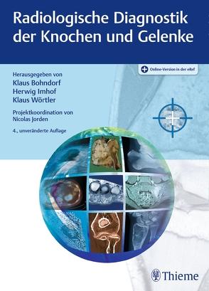 Radiologische Diagnostik der Knochen und Gelenke von Bohndorf,  Klaus, Imhof,  Herwig, Wörtler,  Klaus