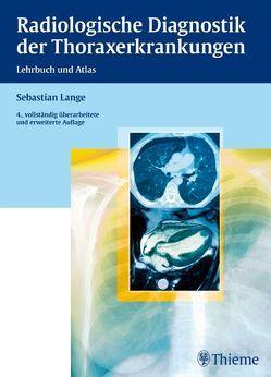 Radiologische Diagnostik der Thoraxerkrankungen von Lange,  Sebastian, Montag,  Michael