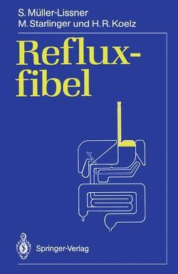 Refluxfibel von Koelz,  H.R., Müller-Lissner,  Stefan, Starlinger,  M.
