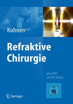 Refraktive Chirurgie von Kohnen,  Thomas