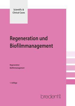 Regeneration und Biofilmmanagement von Kneipp,  Anna, Sculean,  Anton