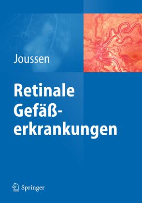 Retinale Gefäßerkrankungen von Joussen,  Antonia