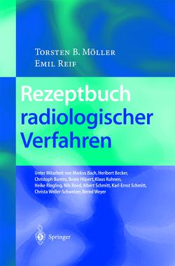 Rezeptbuch radiologischer Verfahren von Bach,  M., Becker,  H., Buntru,  C., Hilpert,  B., Kuhnen,  K., Möller,  Torsten B., Reif,  Emil, Ringling,  H., Roed,  N., Schmitt,  A., Schmitt,  K.-E., Weller-Schweizer,  C., Weyer,  B.