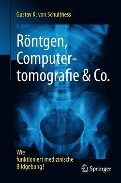 Röntgen, Computertomografie & Co. von von Schulthess,  Gustav K.