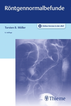 Röntgennormalbefunde von Möller,  Torsten Bert