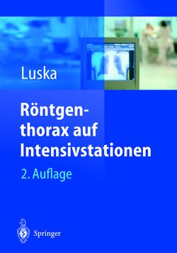 Röntgenthorax auf Intensivstationen von Boetticher,  Heiner, Kuckelt,  W., Luska,  Günter, Saßen,  R., Schwarze,  L.