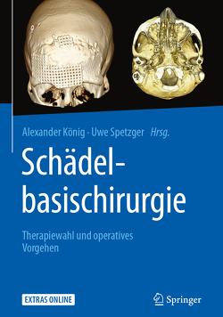 Schädelbasischirurgie von Koenig,  Alexander, Spetzger,  Uwe