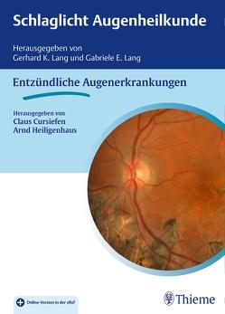 Schlaglicht Augenheilkunde: Entzündliche Erkrankungen von Cursiefen,  Claus, Heiligenhaus,  Arnd, Lang,  Gabriele E., Lang,  Gerhard K.