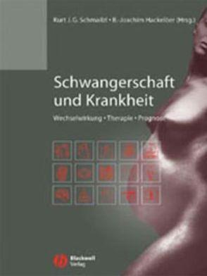 Schwangerschaft und Krankheit von Hackelöer,  Bernhard-Joachim, Schmailzl,  Kurt J. G.