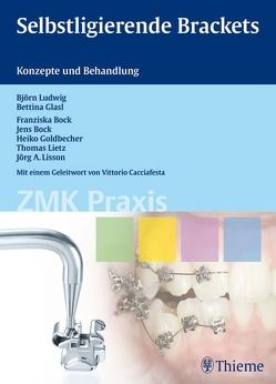 Selbstligierende Brackets von Bock,  Franziska, Bock,  Jens Johannes, Glasl,  Bettina, Goldbecher,  Heiko, Ludwig,  Björn