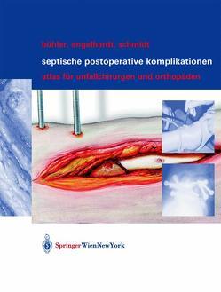 Septische postoperative Komplikationen von Bühler,  Matthias, Engelhardt,  Martin, Schmidt,  Hergo G.K.