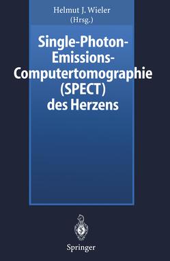 Single-Photon-Emissions-Computertomographie (SPECT) des Herzens von Wieler,  Helmut J.