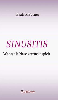 SINUSITIS von Purner,  Beatrix