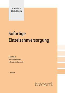 Sofortige Einzelzahnversorgung von Gomez-Roman,  German, Kneipp,  Anna