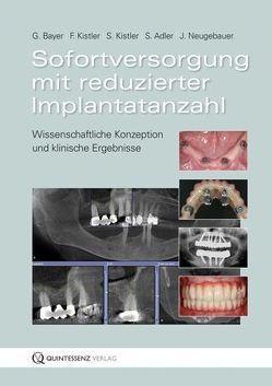 Sofortversorgung mit reduzierter Implantatanzahl von Adler,  S., Bayer,  G., Kistler,  F., Kistler,  S., Neugebauer,  J.