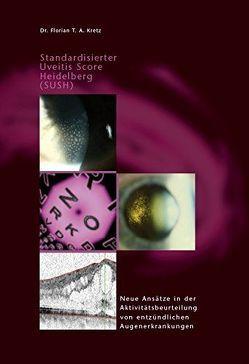 Standardisierter Uveitis Score Heidelberg (SUSH) von Kretz,  Florian T.A.