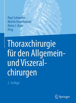 Thoraxchirurgie für den Allgemein- und Viszeralchirurgen von Buhr,  Heinz J., Kruschewski,  Martin, Schneider,  Paul