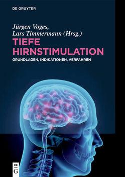 Tiefe Hirnstimulation von Timmermann,  Lars, Voges,  Jürgen