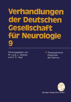 Topographische Diagnostik des Gehirns von Deecke,  Lüder, Hopf,  Hans C., Lang,  Wilfried