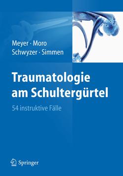 Traumatologie am Schultergürtel von Meyer,  Rainer-Peter, Moro,  Fabrizio, Schwyzer,  Hans-Kaspar, Simmen,  Beat René