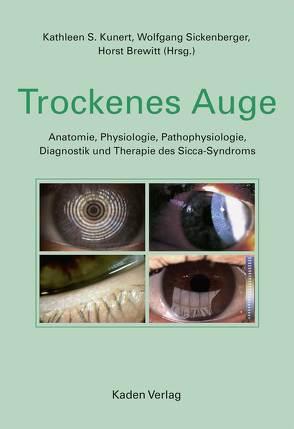 Trockenes Auge von Brewitt,  Horst, Kunert,  Kathleen S., Sickenberger,  Wolfgang