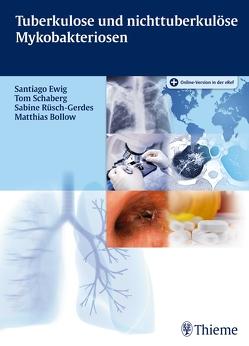 Tuberkulose und nicht tuberkulöse Mykobakteriosen von Bollow,  Matthias, Ewig,  Santiago, Rüsch-Gerdes,  Sabine, Schaberg,  Tom