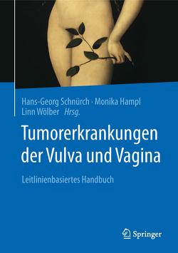 Tumorerkrankungen der Vulva und Vagina von Hampl,  Monika, Schnürch,  Hans-Georg, Wölber,  Linn