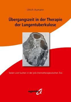 Übergangszeit in der Therapie der Lungentuberkulose von Aumann,  Ulrich