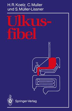 Ulkusfibel von Koelz,  Hans R., Muller,  Claude, Müller-Lissner,  Stefan