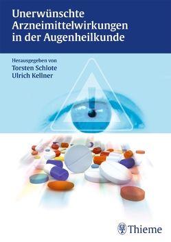 Unerwünschte Arzneimittelwirkungen in der Augenheilkunde von Kellner,  Ulrich, Schlote,  Torsten