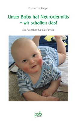 Unser Baby hat Neurodermitis – wir schaffen das! von Kuppe,  Friederike, Kuppe,  Konstantin