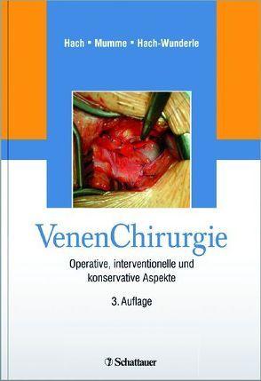 VenenChirurgie von Hach,  Wolfgang, Hach-Wunderle,  Viola, Mumme,  Achim