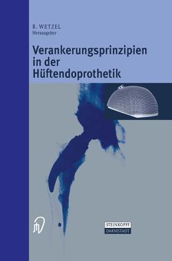 Verankerungsprinzipien in der Hüftendoprothetik von Wetzel,  Roland
