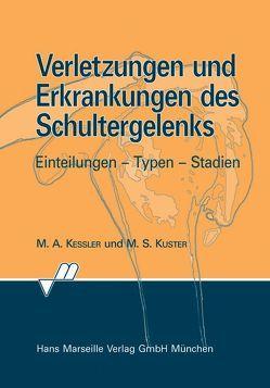 Verletzungen und Erkrankungen des Schultergelenks von Kessler,  Markus A, Kuster,  Markus S