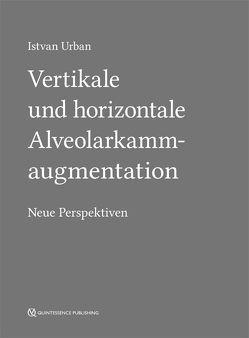 Vertikale und horizontale Alveolarkammaugmentation von Urban,  Istvan