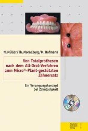 Von Totalprothesen nach dem All-Oral-Verfahren zum Micro©-Plant-gestützten Zahnersatz von Hofmann,  Manfred, Morneburg,  Thomas, Müller,  Norbert