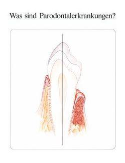 Was sind Parodontalerkrankungen? von Berns,  Joel M