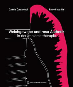 Weichgewebe und rosa Ästhetik in der Implantattherapie von Cardaropoli,  Daniele, Casentini,  Paolo