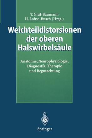 Weichteildistorsionen der oberen Halswirbelsäule von Graf-Baumann,  Toni, Lohse-Busch,  Henning