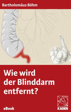 Wie wird der Blinddarm entfernt? von Böhm,  Bartholomäus