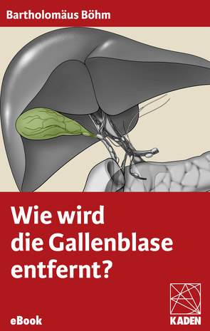 Wie wird die Gallenblase entfernt? von Böhm,  Bartholomäus