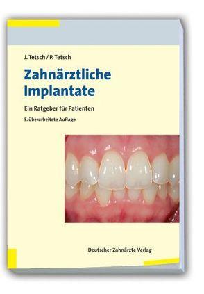 Zahnärztliche Implantate von Tetsch,  Jan, Tetsch,  Peter