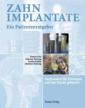 Zahnimplantate – Ein Patientenratgeber von Glas,  Torsten, Hartung,  Johannes, Hartung,  Volkmar, Köditz,  Sandra